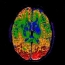 Color Mapping Brain MRI